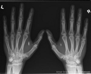 X-Ray image of chipped hands, by Amal Graafstra
